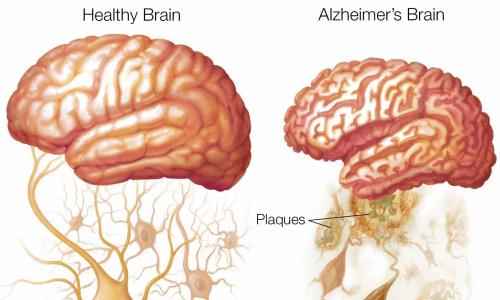 Новый анализ крови определяет риск развития болезни Альцгеймера